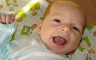 Что делать если появилась молочница на языке у новорожденного