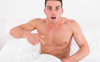 Чем опасна молочница для мужчин