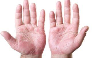 Кандидоз на коже рук