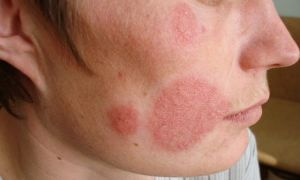 Кандидоз кожи лица