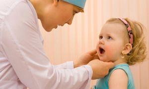 Лечим молочницу у детей в полости рта