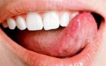 Молочница на языке — причины и лечение