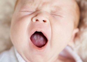 Признаки молочницы у ребенка