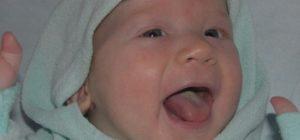 Ребенок с молочницей