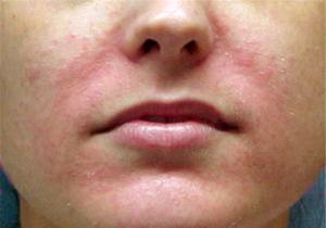 Кандидоз гладкой кожи
