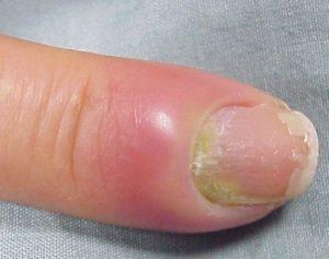 Воспаление ногтевого валика