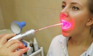 Лазер для горла