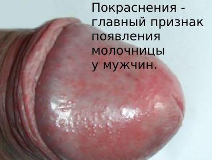 как выглядит молочница у мужчин